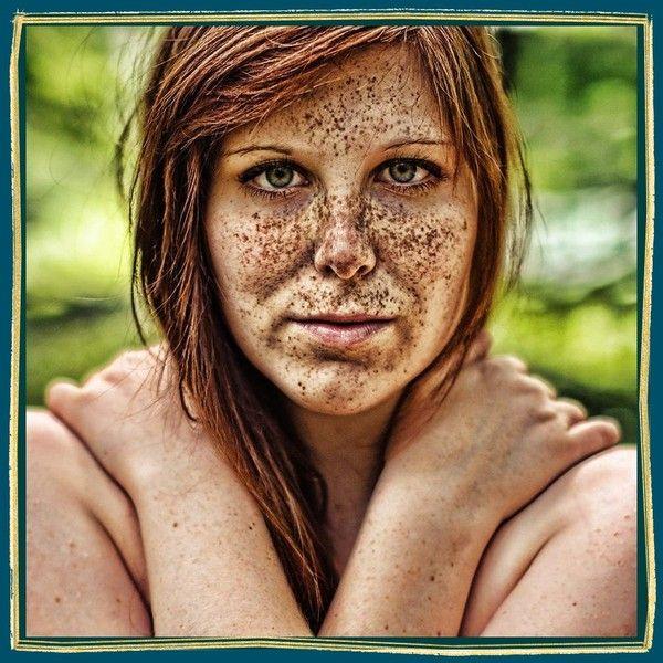 La dermatologie les taches de pigment