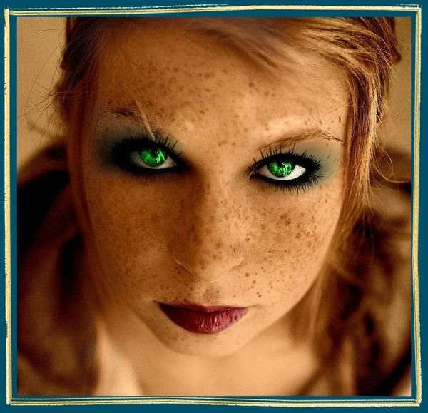 La maladie blanchissant la peau